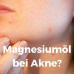 Magnesiumöl bei Akne
